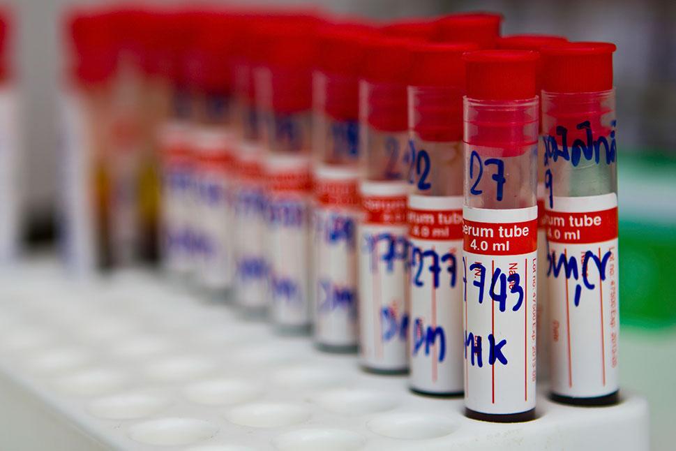 Estudian el plasma con anticuerpos de personas curadas de COVID-19