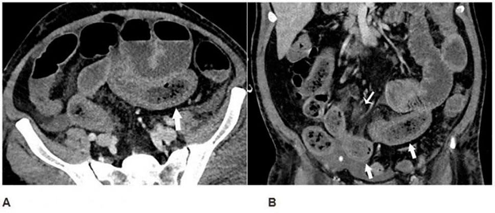 Los pacientes de COVOD-19 pueden tener problemas intestinales