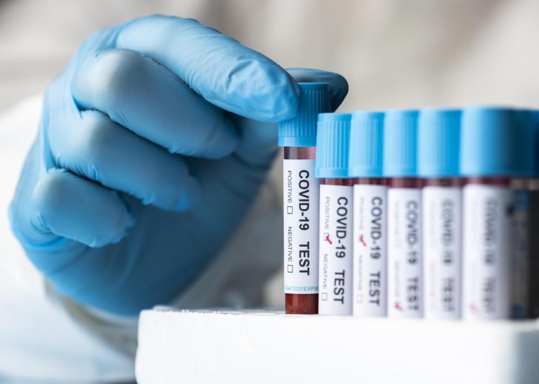 Coronavirus en extremadura: 45 positivos y una mujer fallecida