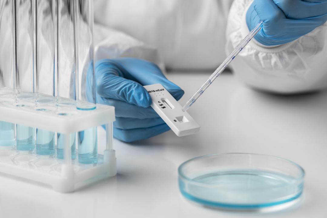 Las farmacias de Badajoz ya venden test de antígenos